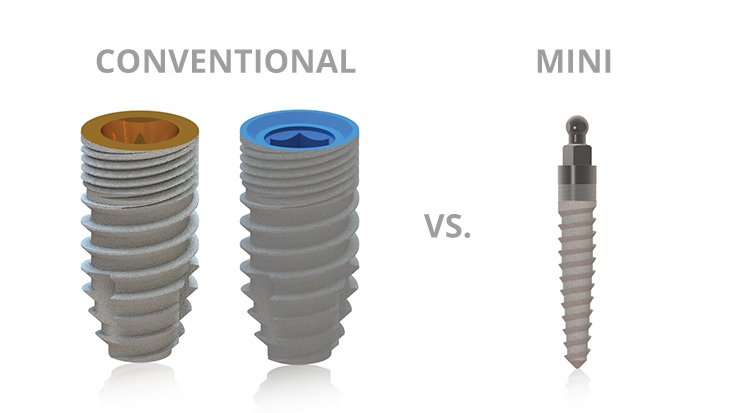 What is the Difference Between Dental Implants and Mini Dental Implants?