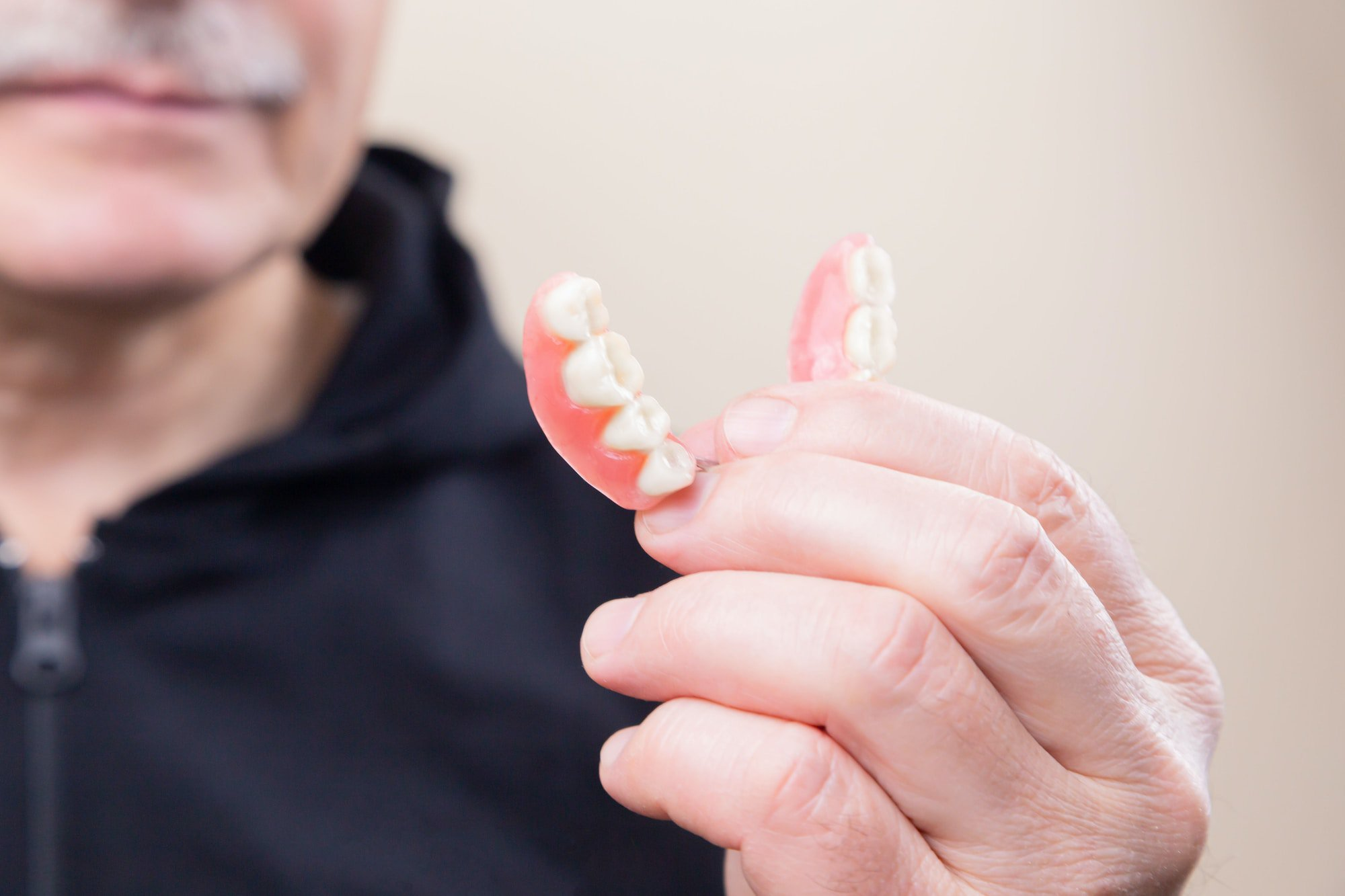 What Is An Overdenture and How Is It Supported?