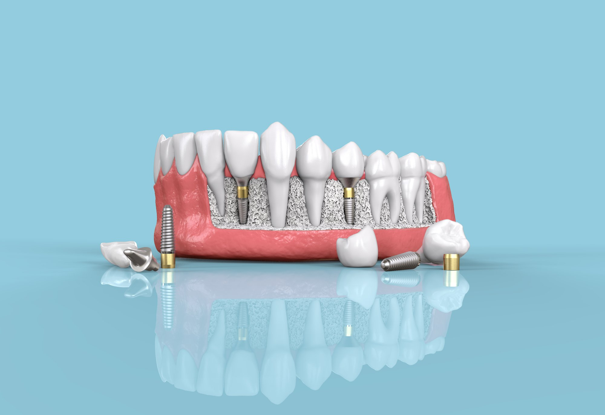 The Ultimate Guide to Affordable Dental Solutions for Dental Implants