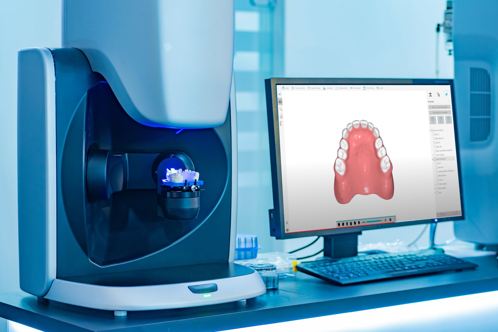 Digital Denture Technology Breakdown
