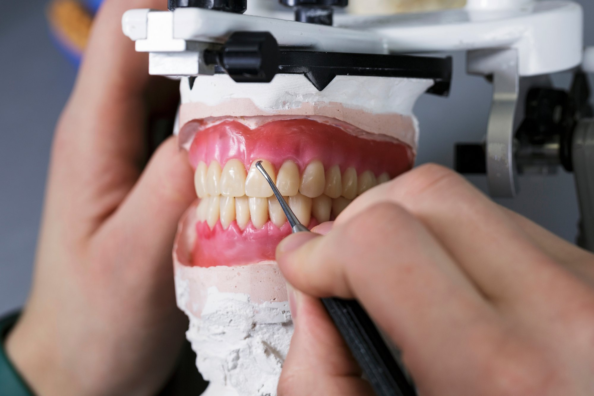 What Dental Labs Need for Optimal Digital Denture Production