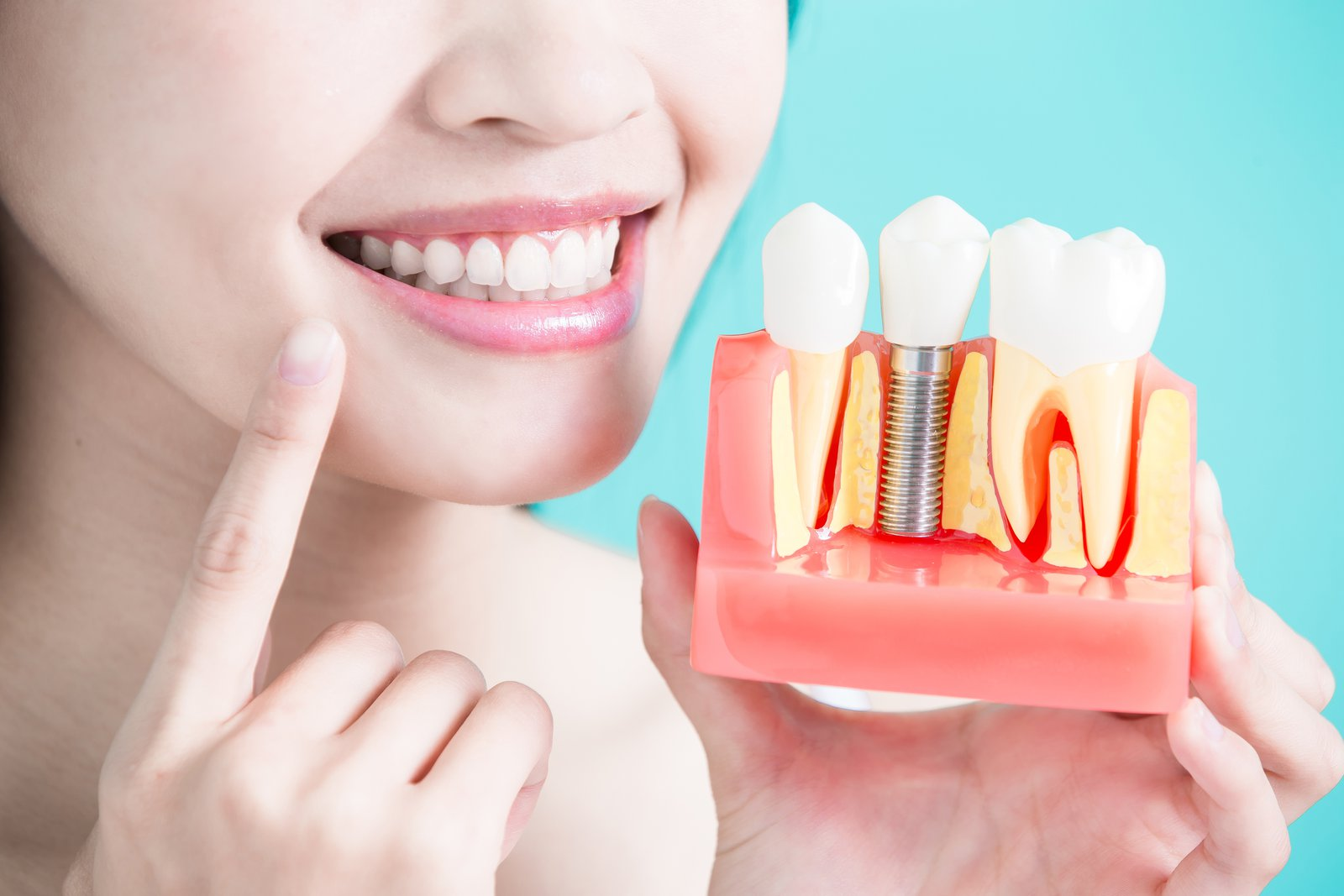 How Does Dental Implant Surgery Work?